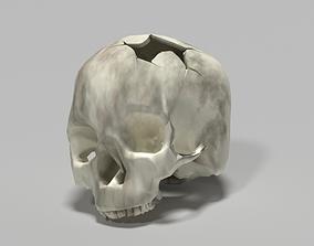 skeleton 3D print model Damaged skull