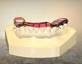 Digital Tanner Splint Orthodontics 3D print model