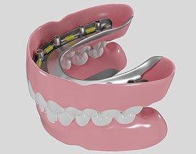 3D Hibrid implant bar attachment