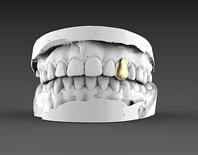 3D print model jaw teeth