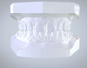Orthodontic Planning Study Model