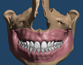 Maxillary and Mandibular dental models with anatomical