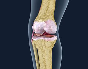3D Osteoporosis of the knee joint