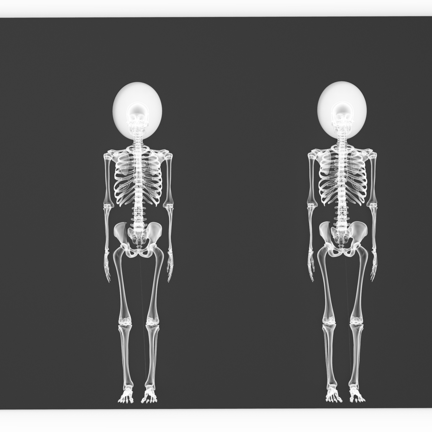 X-ray effect creation