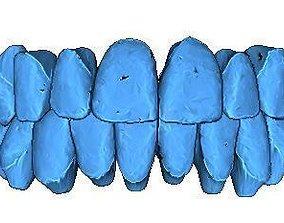 3D print model Human Teeth